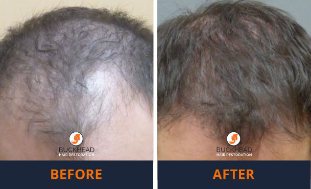 one head hair replacement solutions reviews